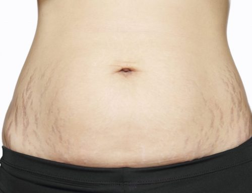 טיפול בסימני מתיחה בבטן