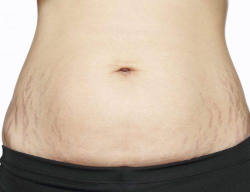 שיפור סימני מתיחה בעור