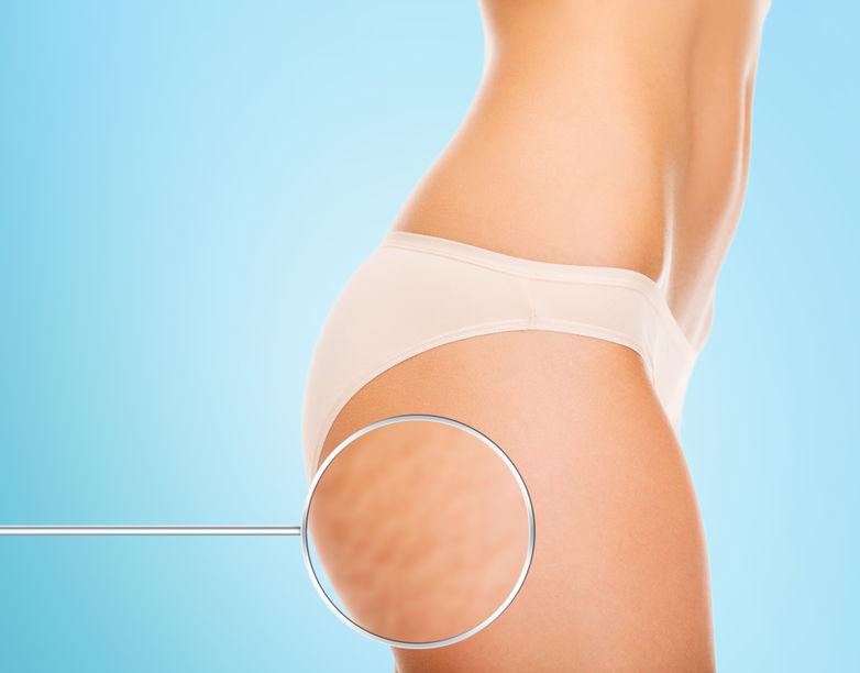 צלוליט לפני ואחרי טיפולים - מהי מידת האפקטיביות?