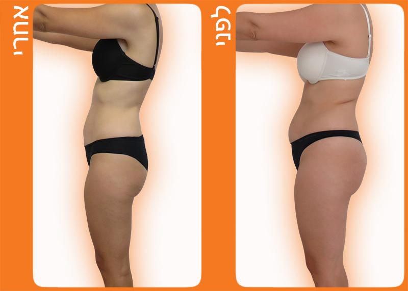 לפני ואחרי חיטוב הגוף
