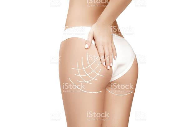 טיפול למיצוק עור הגוף