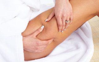 טיפול בסימני הרזיה